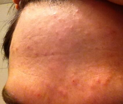 allergisk mot sköljmedel