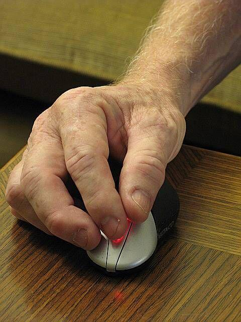 känselbortfall i fingertopparna