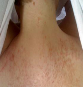 klåda på bröstet amning