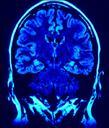 Hjärntumörer
